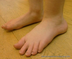 flat feet can cause biomechanical deviations throughout the body which can cause alignment related joint and muscle pains
