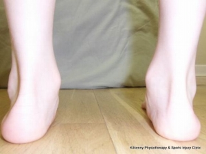 Flt feet are a common cause of pains in the joints and muscles of the legs