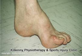 Asupinated foot is known as Pes cavus and as it has lost its shock absorbency it can lead to other problems